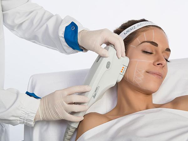 Ultherapy-trattamento