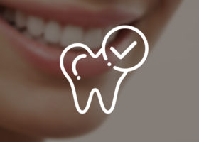 sbiancamento-dentale_miniatur